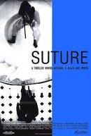 Suture (Sutura)