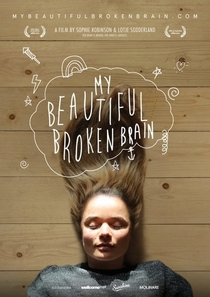 My Beautiful Broken Brain - Poster / Capa / Cartaz - Oficial 3
