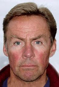 Dale Wilson (I)