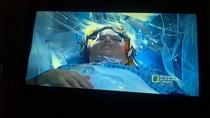 Cirurgia cerebral ao vivo - Poster / Capa / Cartaz - Oficial 1