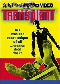 The Amazing Transplant - Poster / Capa / Cartaz - Oficial 2