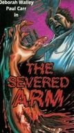 A Vingança Será Minha (The Severed Arm)