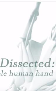 Dissecado: A Incrível Mão Humana - Poster / Capa / Cartaz - Oficial 1