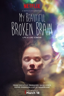 My Beautiful Broken Brain - Poster / Capa / Cartaz - Oficial 1