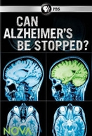 Can Alzheimer's Be Stopped? (Can Alzheimer's Be Stopped?)