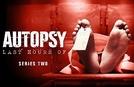 Autópsia de Famosos (2ª Temporada) (Autopsy: The Last Hours of  (Season 2))