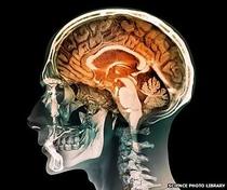Seu Cérebro é Masculino ou Feminino? - Poster / Capa / Cartaz - Oficial 1