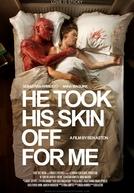 Ele Tirou Sua Pele Por Mim